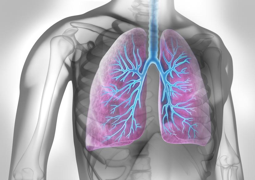 Tipologie e sintomi del tumore del polmone