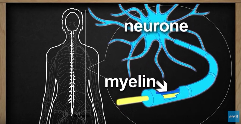 What is Multiple sclerosis | AFP news agency