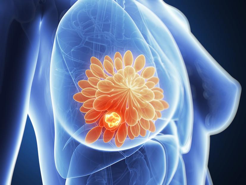 I fattori di rischio del carcinoma mammario