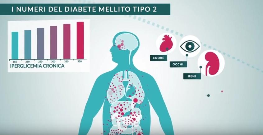 Il diabete mellito di tipo 2 | Esinodop Trial